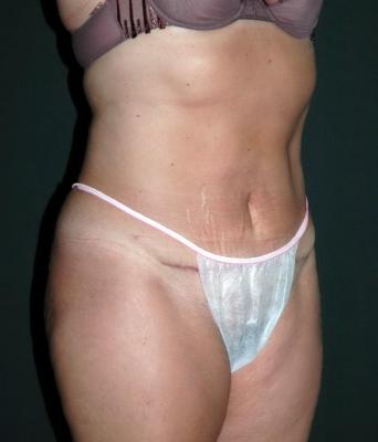 mini tummy tuck scar
